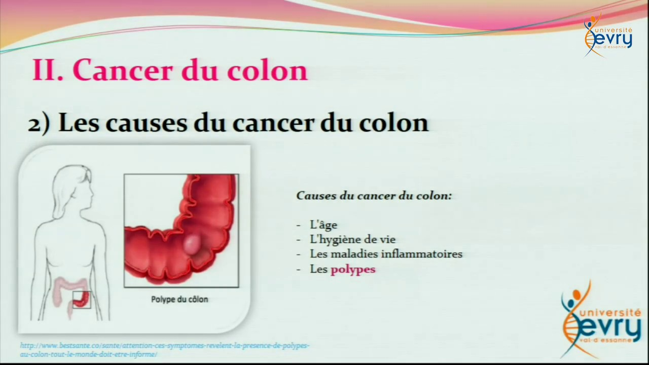 cancer colorectal viande)