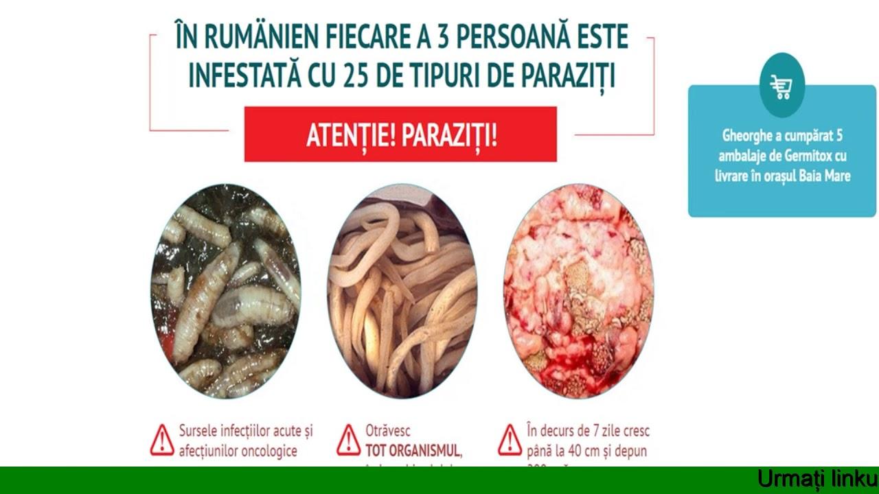 Retete pentru a scapa de viermi, 7 remedii naturale contra parazitilor intestinali