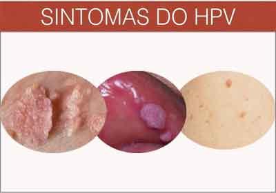 hpv genital feminina sintomas)