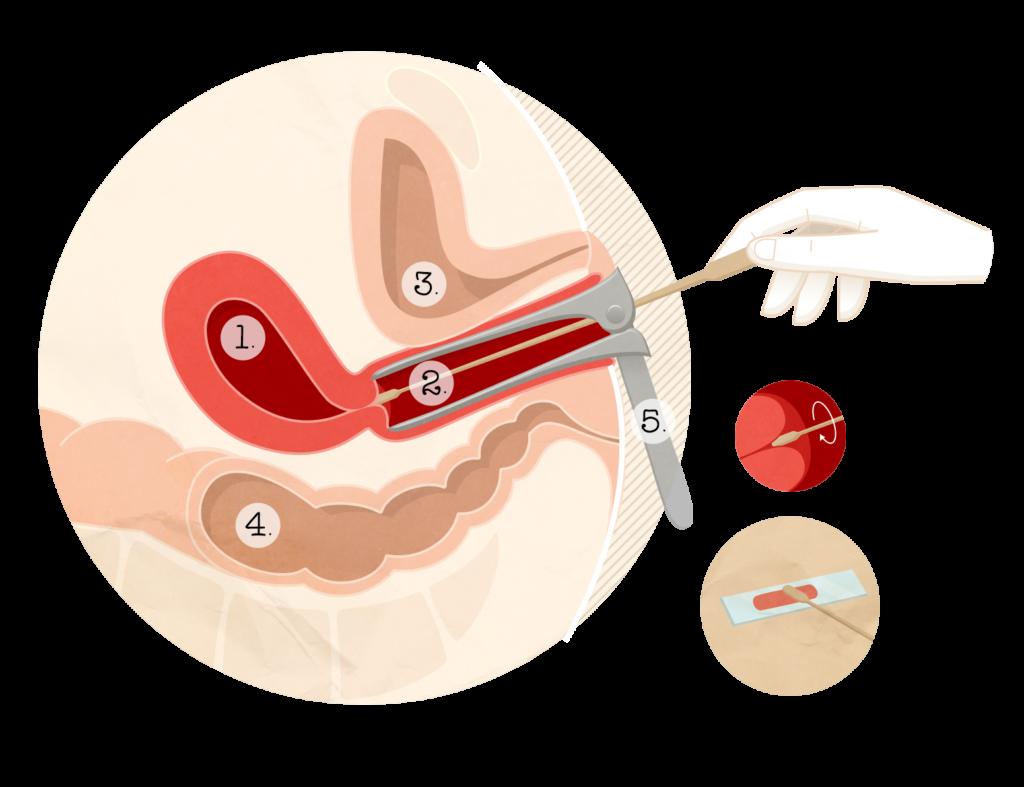 papillomavirus frottis anormal