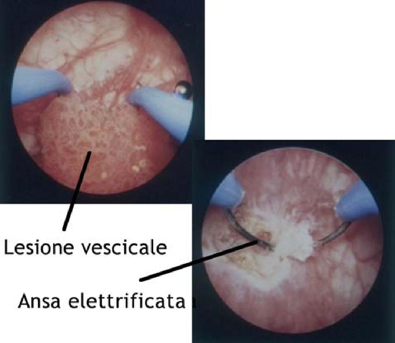 Prostatita papilloma, Papilloma della vescica nelluomo