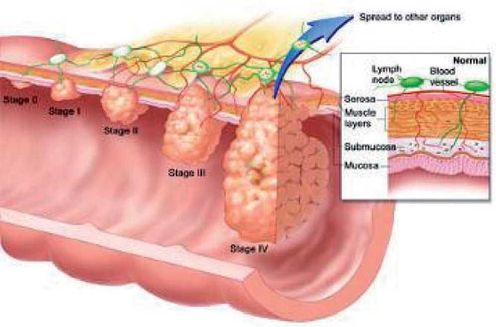 Cancer colon nivel 4, Stadiile cancerului de colon