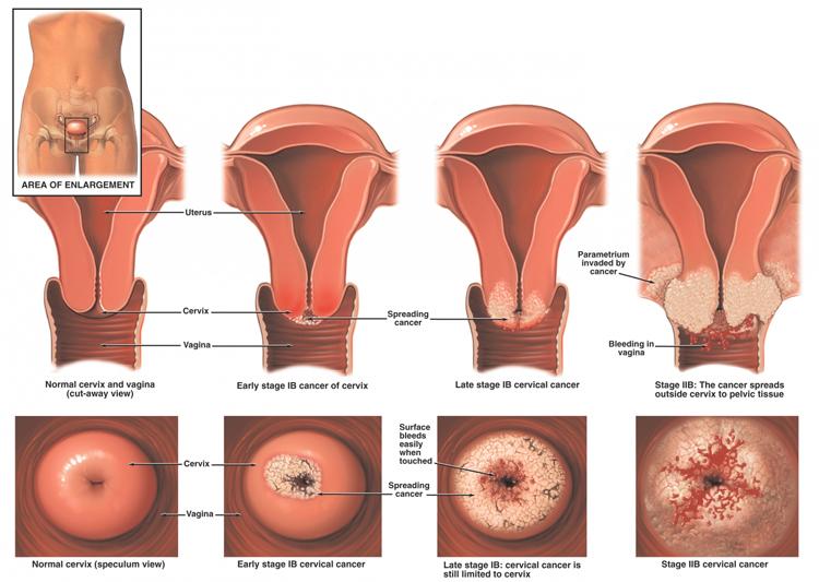 Organele genitale interne ale femeii | Zanzu - Hpv virus zwanger worden