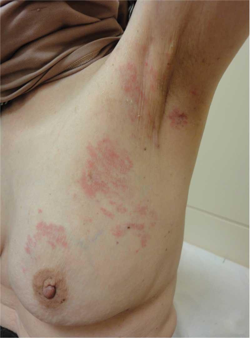 metastatic cancer and skin)