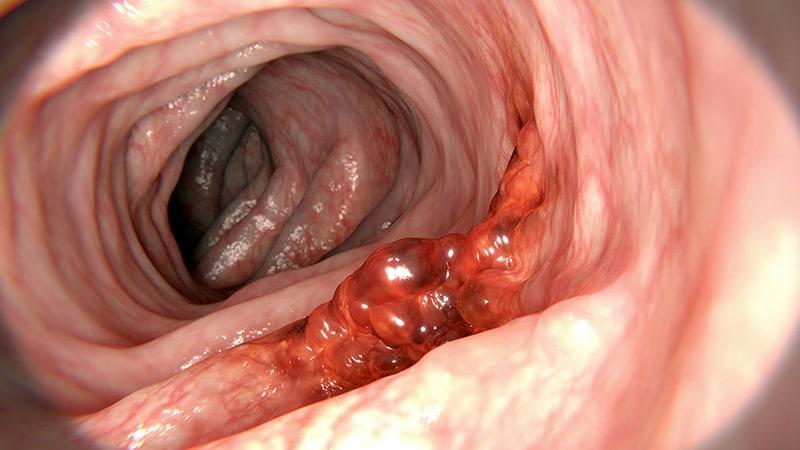 cancer colon hpv