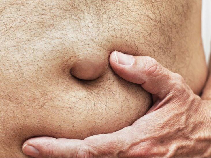 cancer abdominal mass)