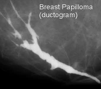 do intraductal papillomas need to be removed
