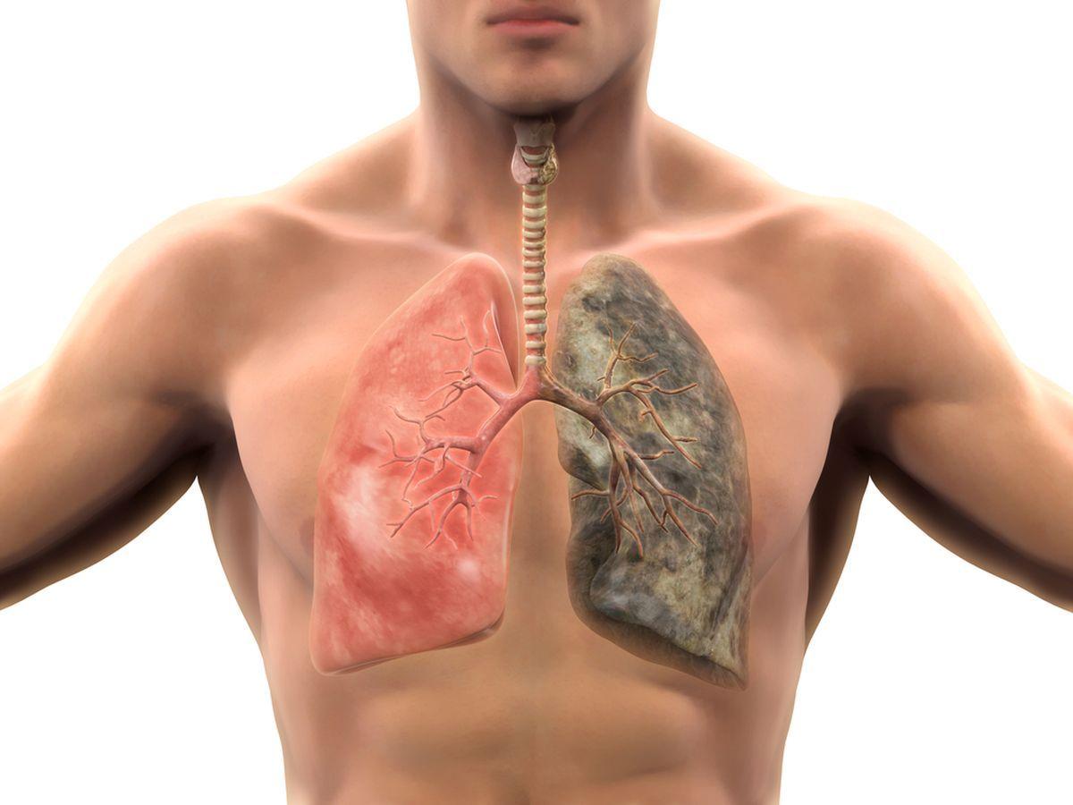 ce este cancerul de plamani)