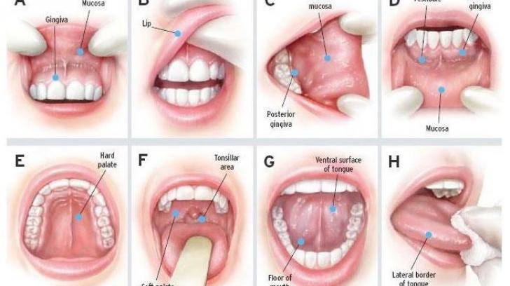 cancer glanda salivara simptome