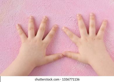 helmintiaza pediatrică ca tratament)