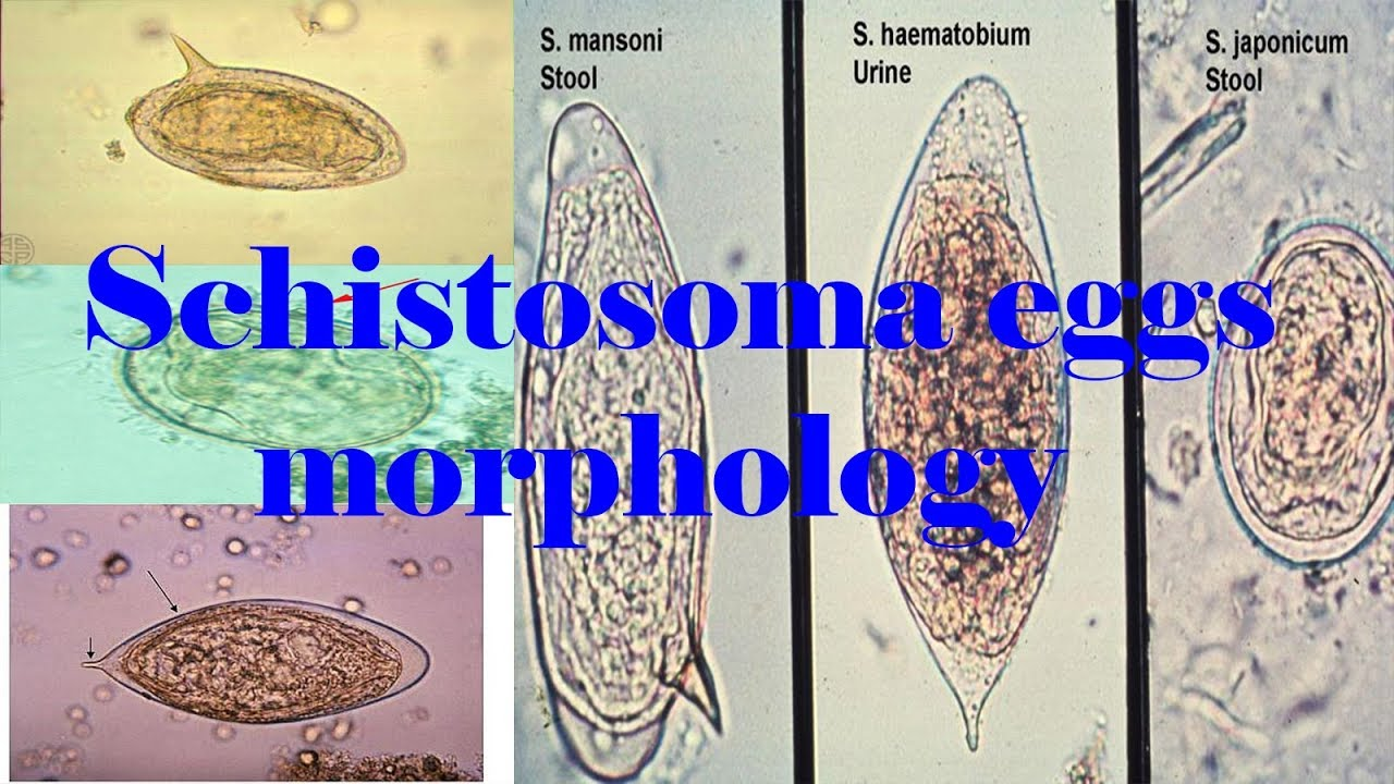 schistosomiasis eggs)