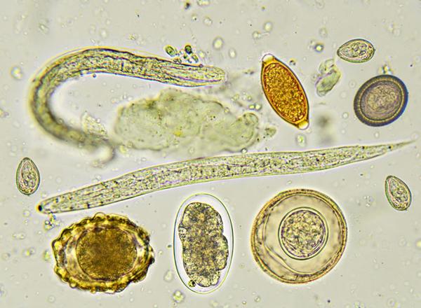 enterobius vermicularis ova in stool