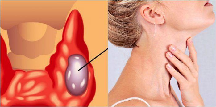 simptome de vierme la o femeie
