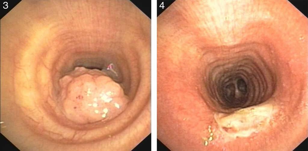Sinonasal papilloma treatment. Romanian Journal of Rhinology -