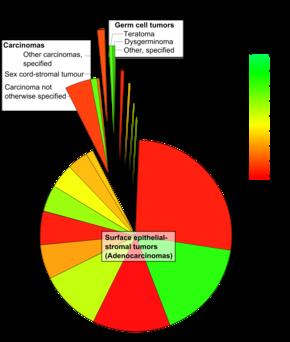 ovarian cancer types epithelial tumors
