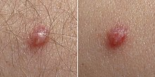 Papilloma sintomi uomo Virus del papiloma humano en los hombres sintomas