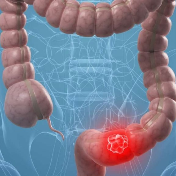 cancer de colorectal)