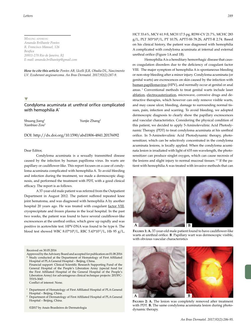 condyloma acuminatum in pregnancy