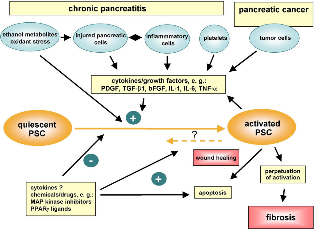 pancreatic cancer with pancreatitis