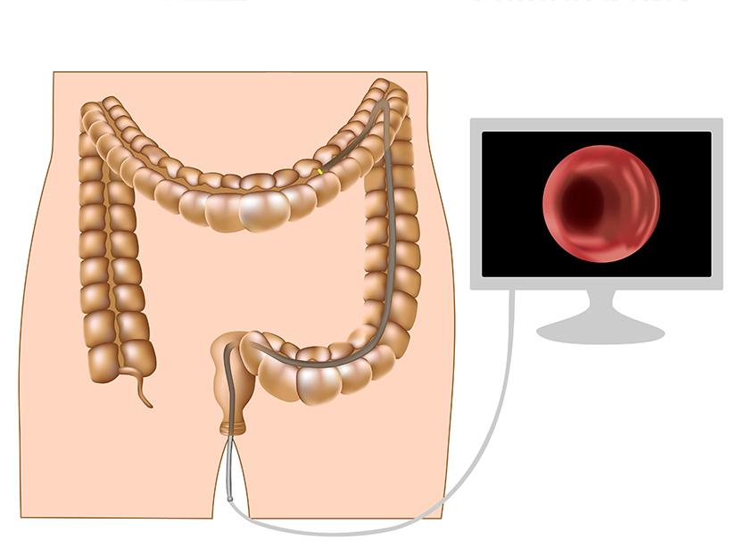 cancer de colon stadiul 3 b)