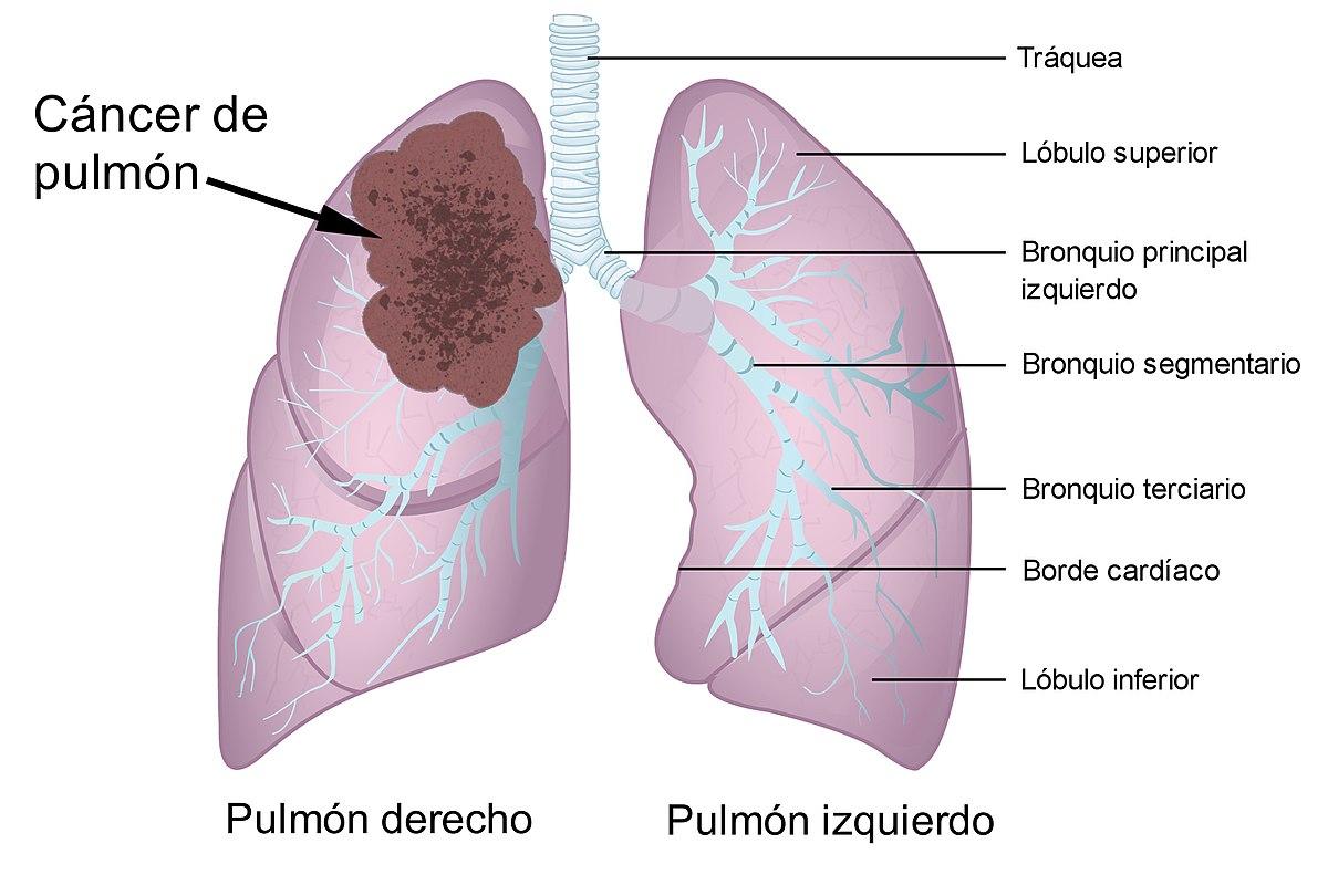 Tumora pulmonară