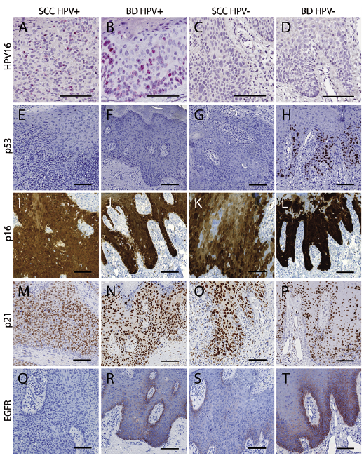 human papillomavirus in situ hybridization