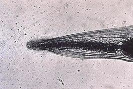 enterobius vermicularis symptomen