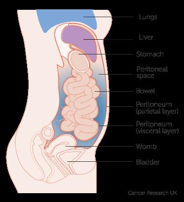 Cancer peritoneal – simptome, cauze, diagnostic, tratament - Cancer