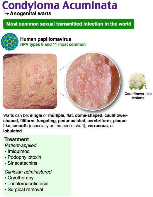 human papillomavirus hpv)- related condyloma