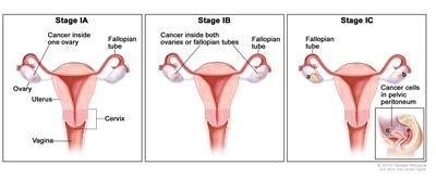 Peritoneal cancer outlook. Viermi la kfc