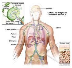comprimate parazite pentru om cu trei comprimate