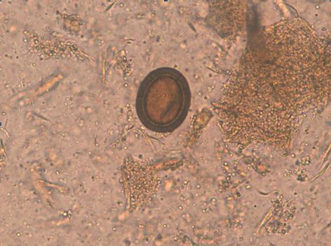 Examen materii fecale la ouă de helminţi Analize depistare paraziti intestinali