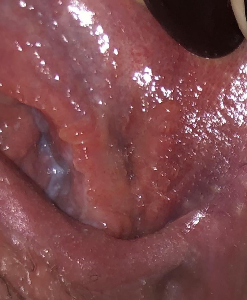 hpv herpes simplex 2)