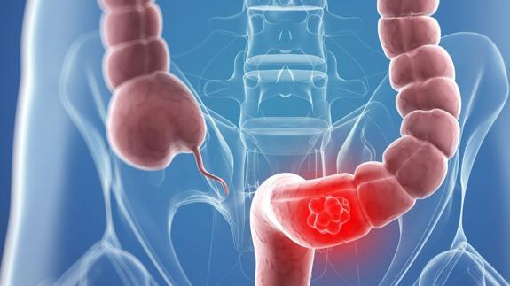 cancer de colon bolsa