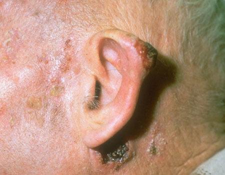 cancerul de piele la ureche