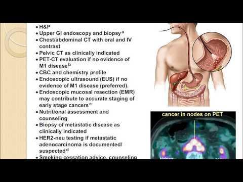 cancer malign la plamani