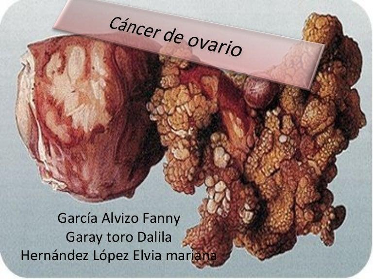 cancer de colon fase 4)
