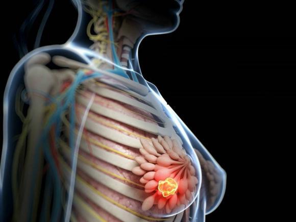 cancer limfatic stadii
