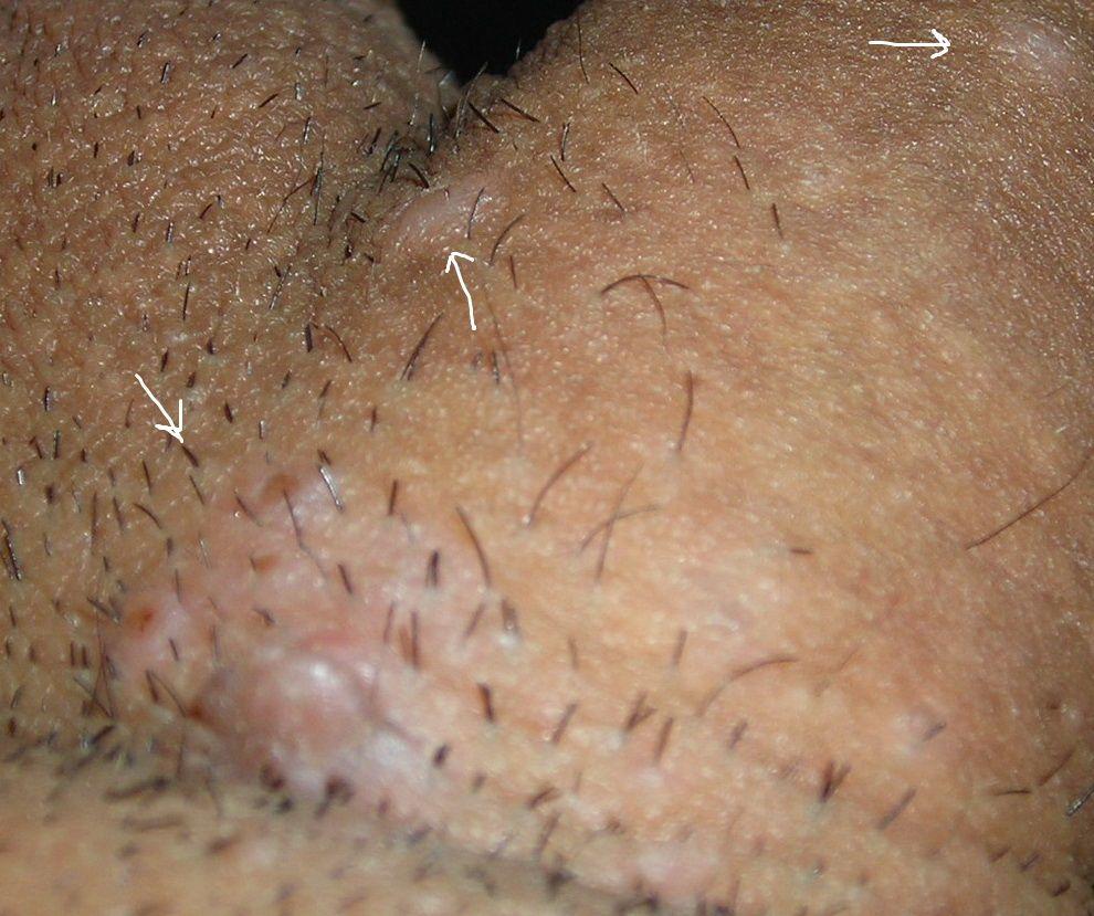 human papillomavirus bumps papiloma boca perro