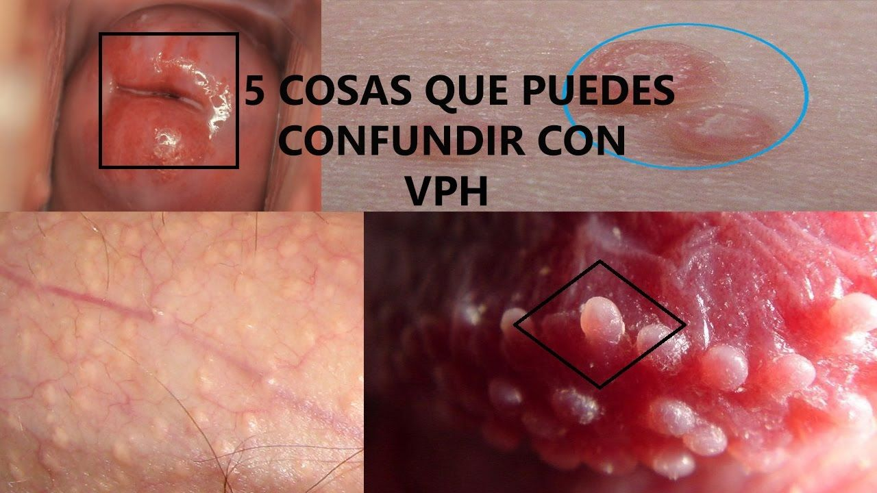 papiloma y herpes