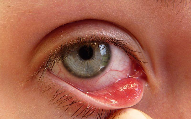 cancer la ochi tratament)