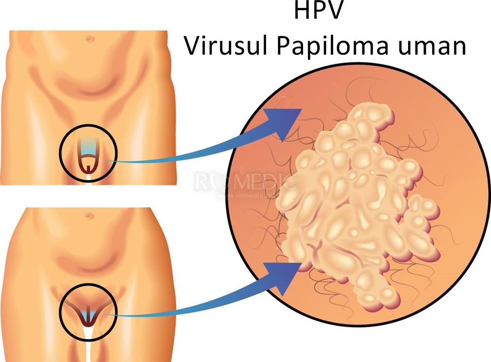 tratament pentru papiloma virus