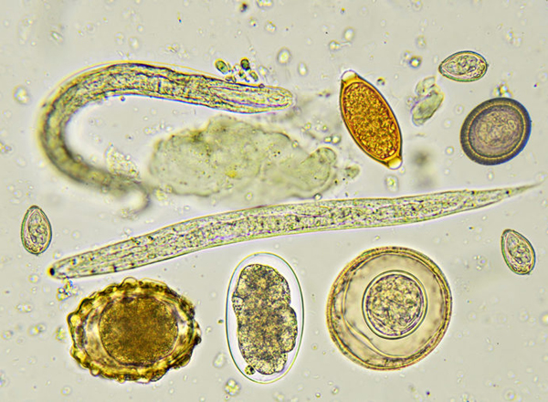 helminth parasitic infection