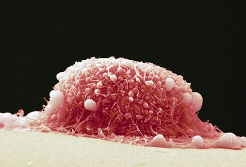 papilloma cancer cells)