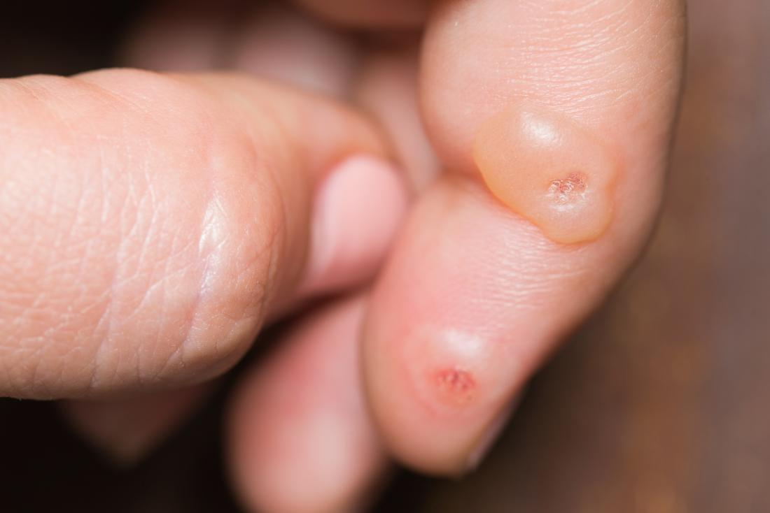 warts on hands from stress
