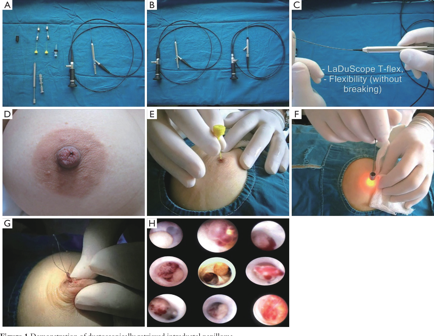 intraductal papilloma surgical excision)