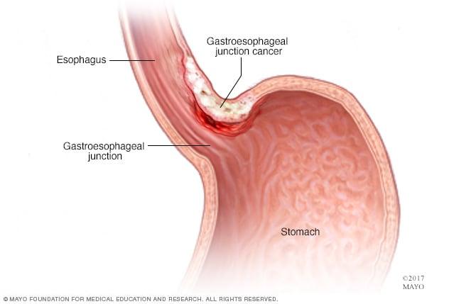 căile de infecție a giardiozei
