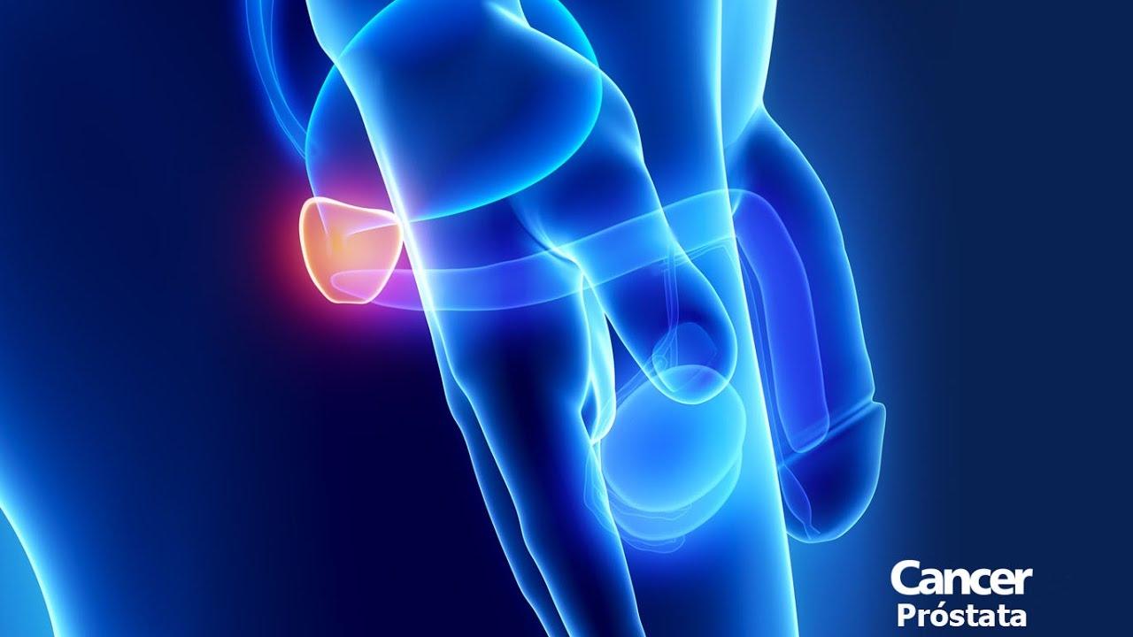 cancer prostata rata supravietuire)