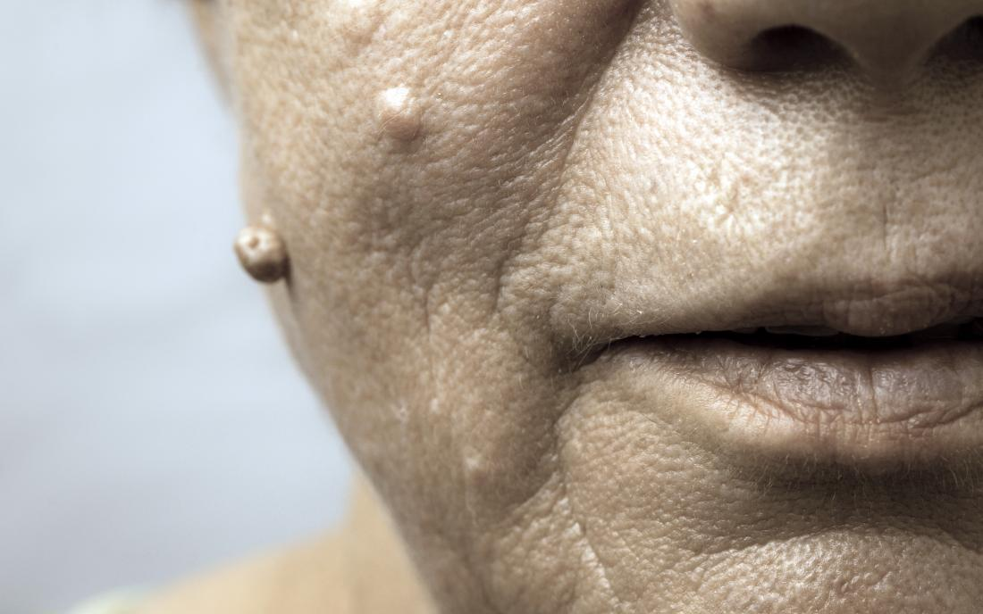 human papillomavirus infection on face