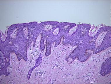 reticulated papillomatosis histology